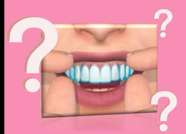 Hófehér, csillogó fogakra vágyunk, de csak a kérdések kavarognak bennünk és tanácstalanok vagyunk?