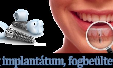 Fog implantátum A-Z ig